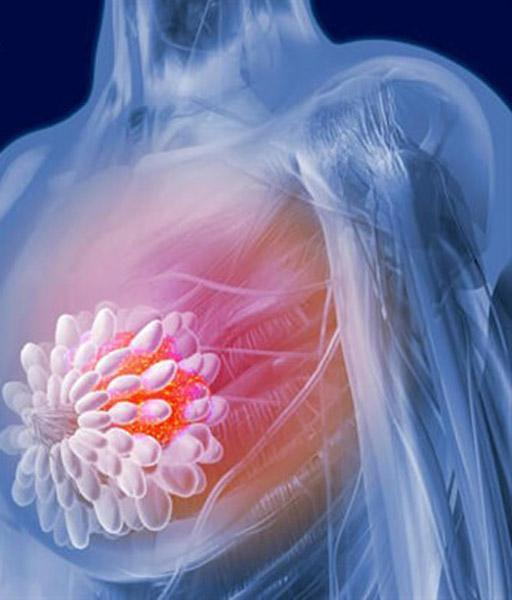 راهی برای پیش بینی ابتلای زنان به سرطان سینه