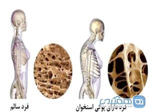چگونه لاغر شدن ما را به پوکی استخوان مبتلا می نماید؟